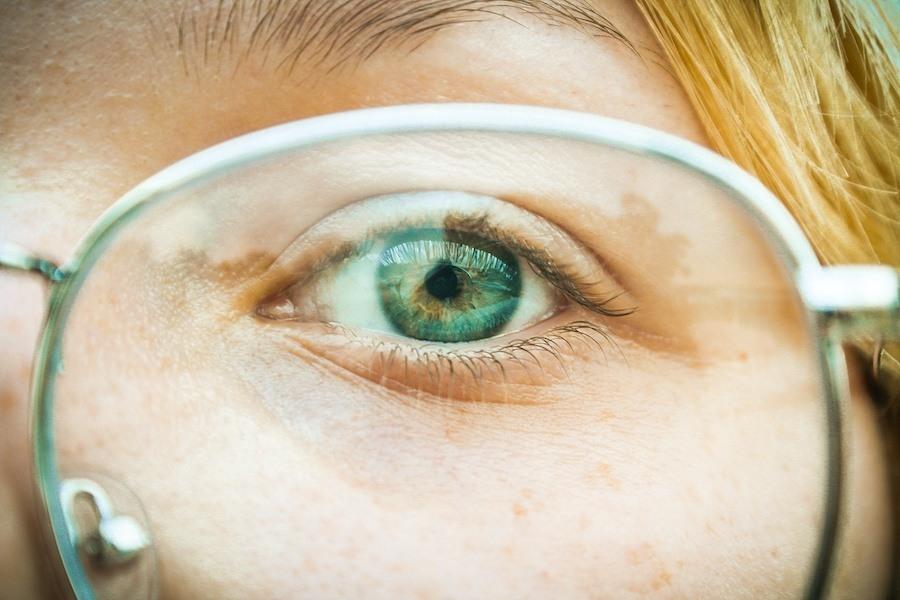 Bild: Auge mit Brille